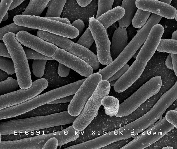 _Escherichia coli_