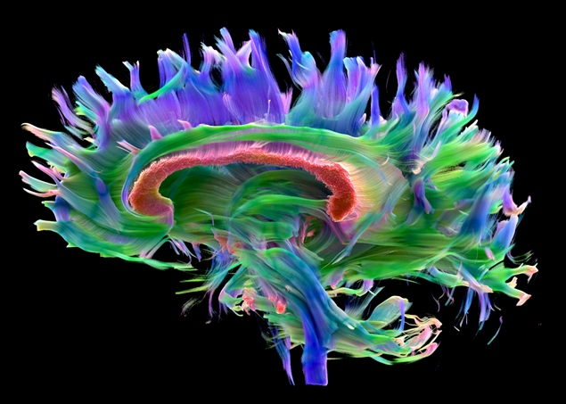 Modelo tridimensional do cérebro