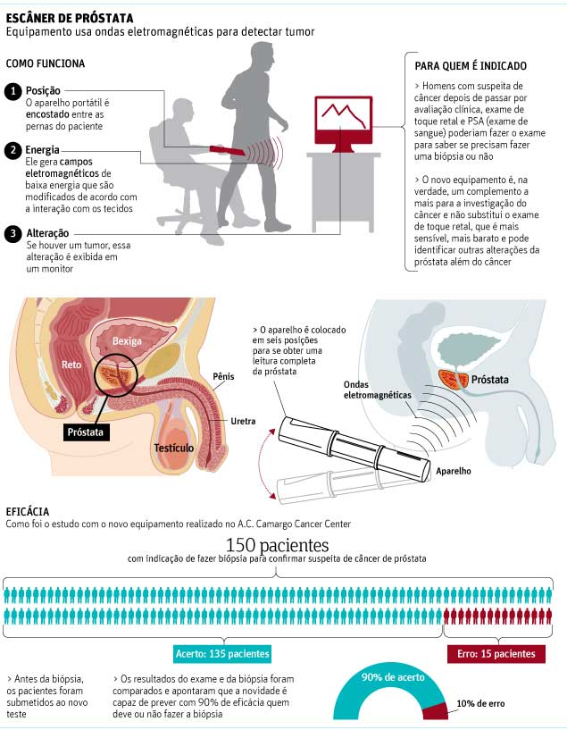 biopsia de prostata cancer