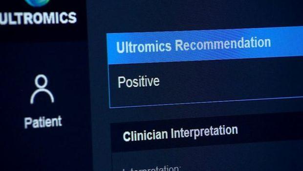 Sistema avalia os riscos de problemas cardíacos e faz recomendações ao paciente