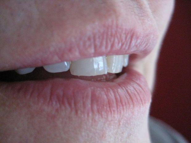 A comum herpes tipo 1 costuma aparecer na região dos lábios