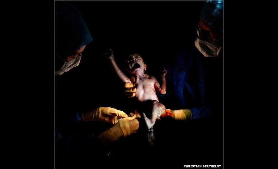 Primeiros segundos de bebês nascidos por cesárea