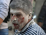 Homem fica ferido em ataques aéreos em Bustan al-Qasr, área rebelde de Aleppo, na Síria
