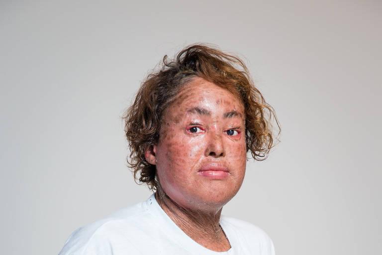 Winny Dias é portadora de ictiose lamelar, doença sem cura que resseca e causa fissuras na pele