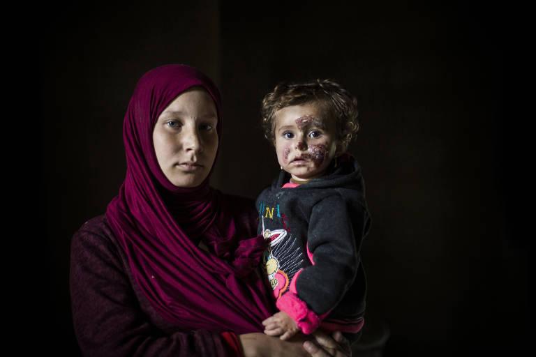 Abir, 17, carrega em seu colo Beshayer, 1, que sobreviveu à nevasca nas montanhas; a bebê sofreu queimaduras no rosto devido ao congelamento