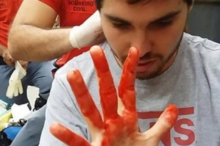 O jovem João Pedro Medeiros recebe atendimento após ser agredido em banheiro do shopping Higienópolis, na região central de São Paulo