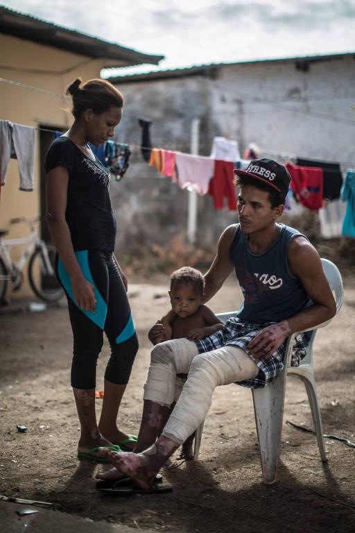 Família venezuelana sofre ataque em Roraima