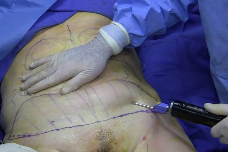 Mulher de 40 anos passa por procedimentos de lipoaspiração e abdominoplastia