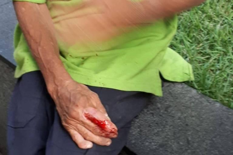 Detalhe da mão ferida e da camisa ensanguentada após a agressão