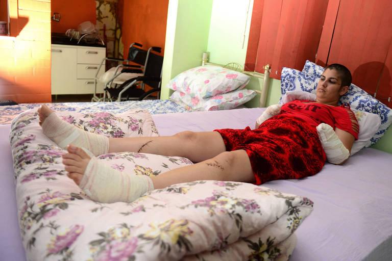 Gisele Santos teve as mãos decepadas pelo companheiro, que a agrediu com um facão