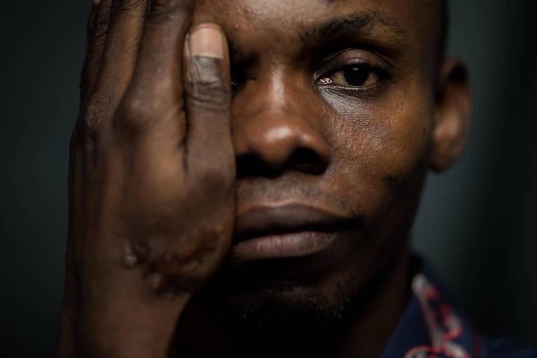 Na mão do engenheiro civil Jean Katumba Mulondayi estão marcas das torturas que recebeu no Congo, de onde fugiu para o Brasil