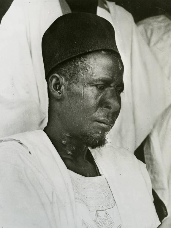 Asibi, paciente a partir do qual a vacina da febre amarela foi feita