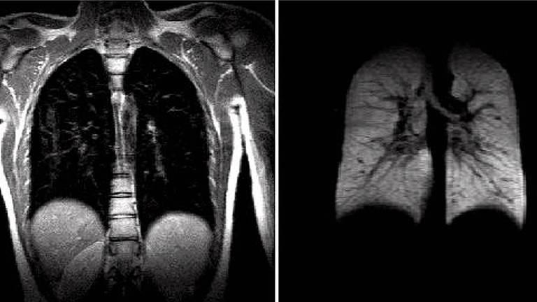 Diferenças de cores (claras e escuras) é mostrada na ressonância magnética de pulmões