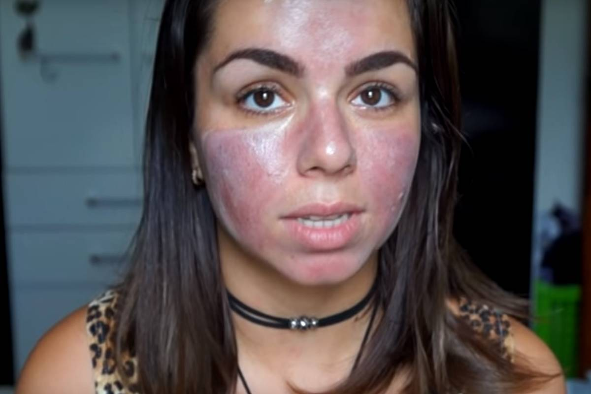Terapia caseira facial com microagulhas vira moda