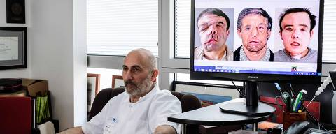 French medicine professor Laurent Lantieri, a specialist in hand and face transplant, poses  next to a screen showing different steps of his patient Jerome Hamon's surgery on April 13, 2018 at the Hopital Europeen Georges-Pompidou in Paris.   Hamon is the first man in the world to twice undergo a face transplant after flu tablets incompatible with his anti-rejection treatment led to the first attempt to fail. / AFP PHOTO / Philippe LOPEZ