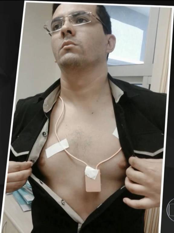 Homem carrega pontos eletrônicos no corpo para fraudar Enem