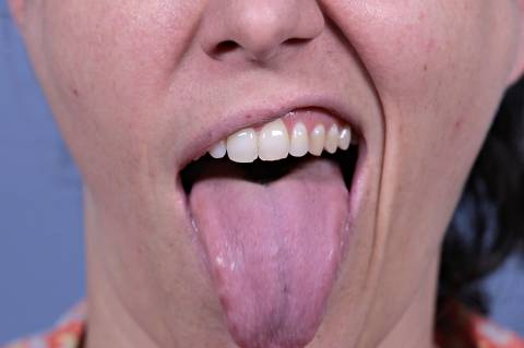 boca para o especial 'o tamanho da língua'