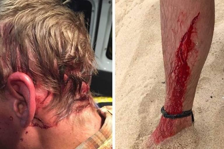 Imagens mostram feriamentos que sofreu em ataque de urso no ano passado (à esquerda) e após a mordida do turbarão na semana passada (à direita)