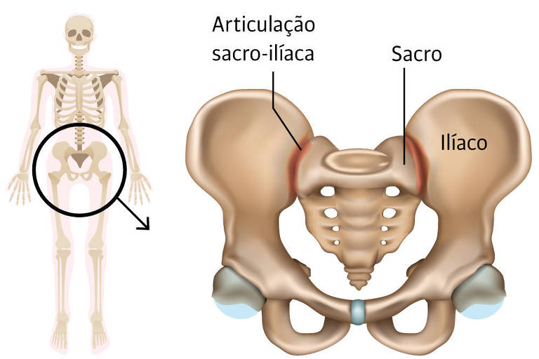 A sacroileíte é uma doença inflamatória na articulação sacro-ilíaca, região que faz a conexão da coluna vertebral (sacro) com os ossos da bacia (ilíacos)
