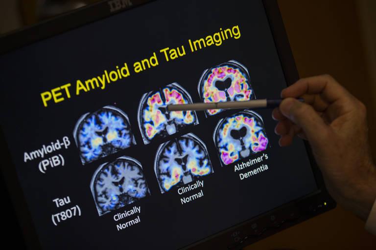 Exames de imagem podem ajudar a encontrar possíveis causas de demências, como o mal de Alzheimer