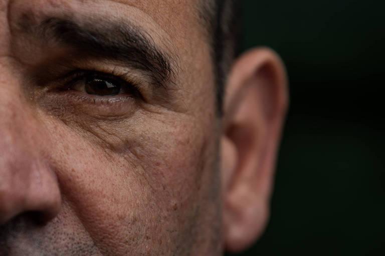 O soldado José Luís Alves, 43, tem até hoje a cicatriz de um tiro que tomou no rosto durante roubo