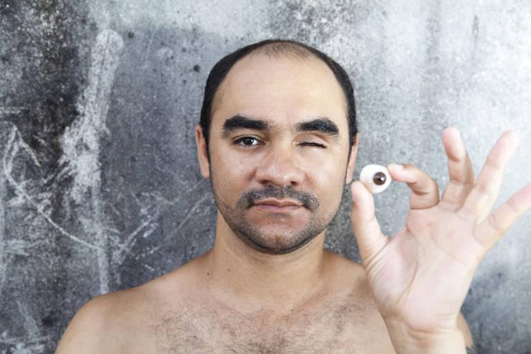 O fotógrafo Sérgio Silva, que ficou cego após ser atingido por bala de borracha durante os protestos de junho de 2013, posa para foto em 2014
