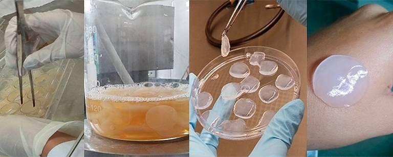Pesquisadores agregam efeitos anti-inflamatórios da bromelina à nanocelulose bacteriana em produto que potencializa cicatrização de ferimentos, queimaduras e até de feridas ulcerativas