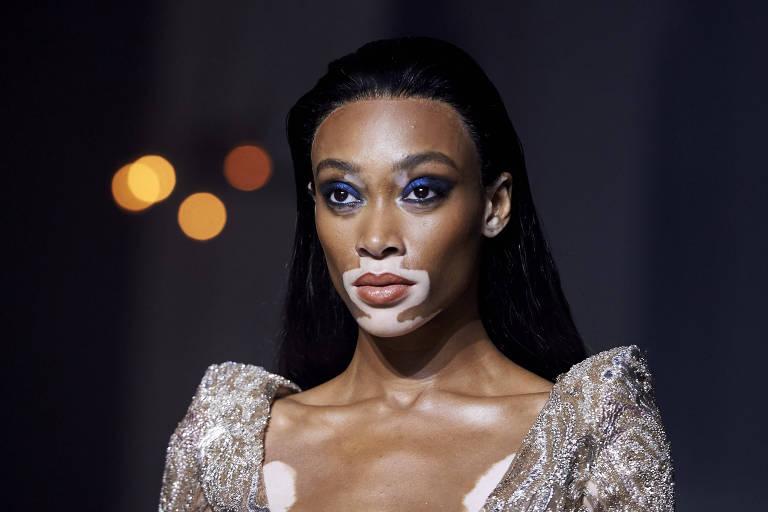 A modelo canadense Chantelle Winnie, conhecida como Winnie Harlow