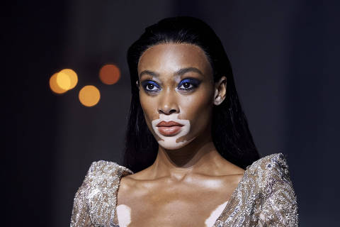 Canadian model Winnie Harlow presents creations from designer Julien Mcdonald during a catwalk show for the Spring/Summer 2019 collection on the second day of London Fashion Week in London on September 15, 2018. (Photo by NIKLAS HALLE'N / AFP)