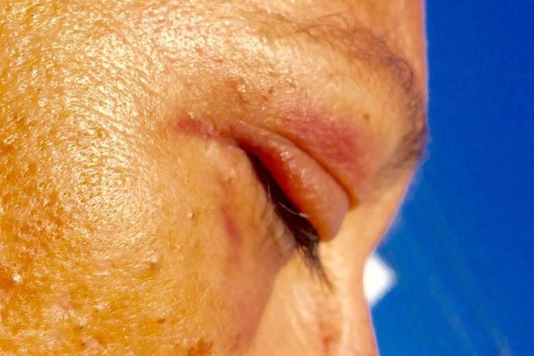 Maria, 45, militante do PSOL agredida com socos na noite desta segunda (24), no Rio de Janeiro