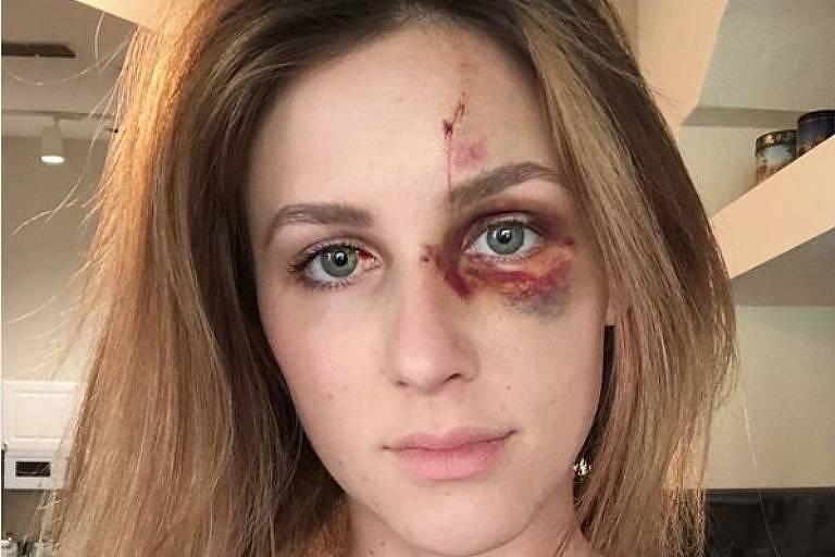 Melissa Gentz mostrou nas redes sociais hematomas deixados pela suposta agressão