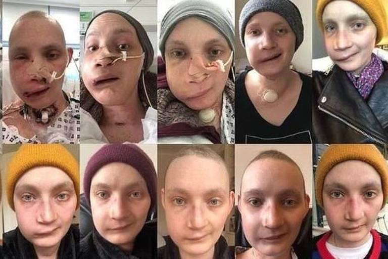 Jen Taylor diz que tirar uma foto todos os dias do próprio rosto ajudou a enfrentar as mudanças depois da cirurgia de reconstrução facial