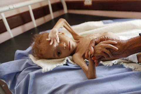 (181001) -- HAJJAH PROVINCE, Oct. 1, 2018 (Xinhua) -- A malnourished child is seen at a hospital in Hajjah province, Yemen, Oct. 1, 2018. (Xinhua/Mohammed Mohammed) (lrz)