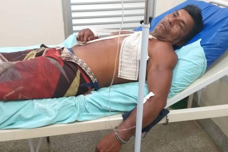 Índio da etnia baré Arlindo Nogueira recebe tratamento algemado, após ser baleado por PM, em Santa Isabel do Rio Negro (AM).