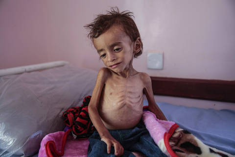 FILE - In this Oct. 1, 2018, photo, a malnourished boy sits on a hospital bed at the Aslam Health Center, Hajjah, Yemen. An estimated 85,000 children under age 5 may have died of hunger and disease since the outbreak of Yemen?s civil war in 2015, an international aid group said Wednesday, Nov. 21, 2018. (AP Photo/Hani Mohammed, File) ORG XMIT: XMA101