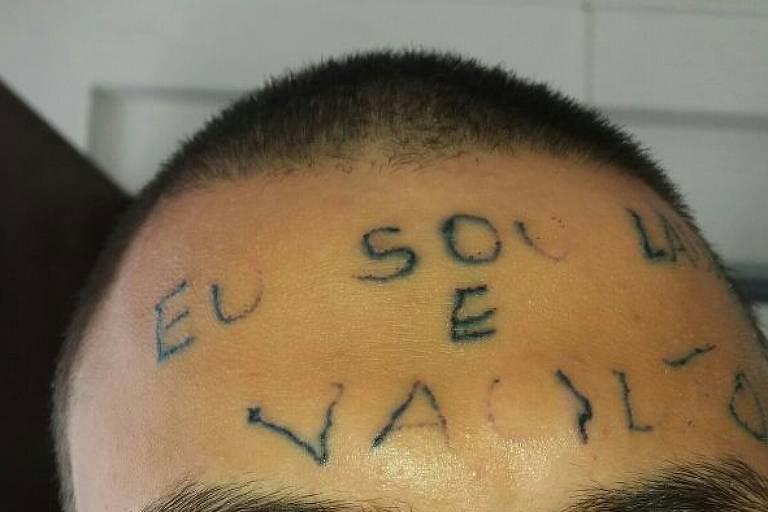 Ruan após algumas sessões para retirar a tatuagem da testa
