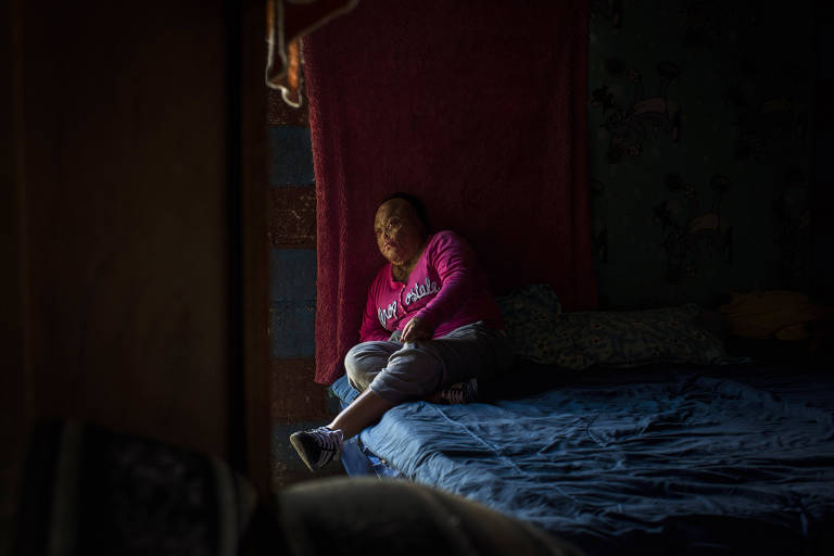A young survivor of the February 2017 fire at a youth shelter rests at her home near Guatemala City on Oct. 30, 2018. She has burns over 95 percent of her body and hardly goes outside anymore to avoid the stares and teasing from other children. (Daniele Volpe/The New York Times)