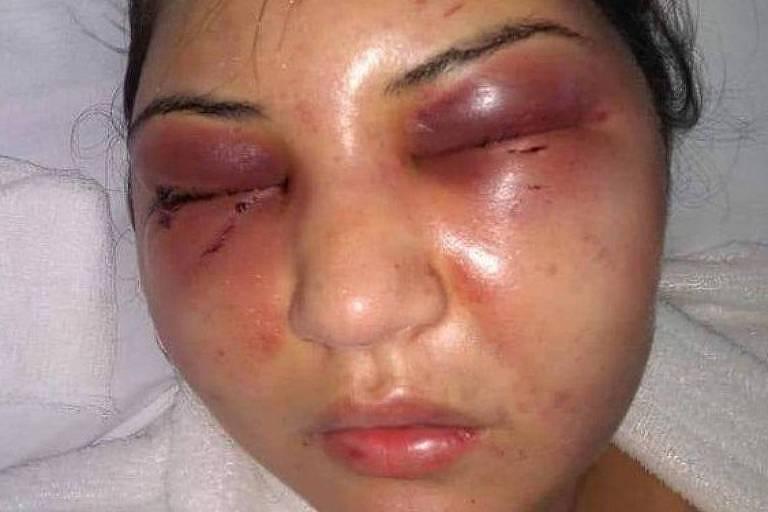 Imagem mostra mulher com marcas de agressões, rosto inchado e olhos roxos