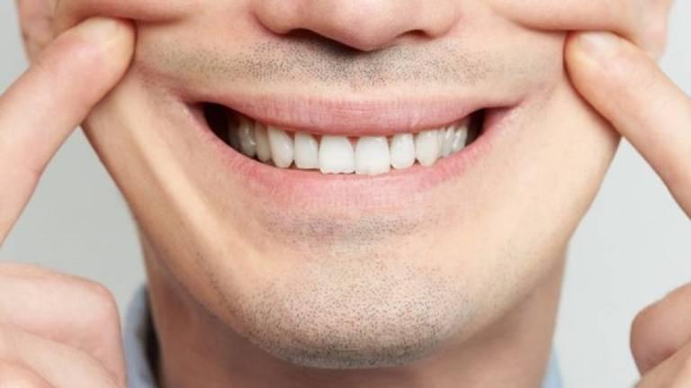 sorriso de um homem, que puxa as pontas de lábios com os dedos