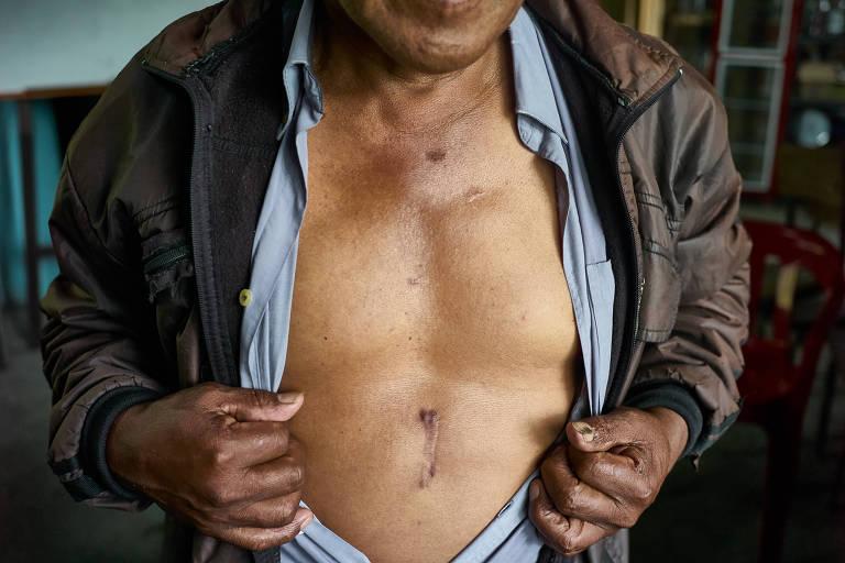 Norte da Colômbia vive aumento de assassinatos de indígenas
