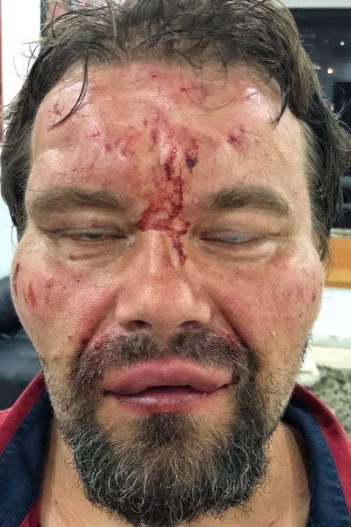 O jornalista polonês Tomasz Surdel, após ser espancado em Caracas