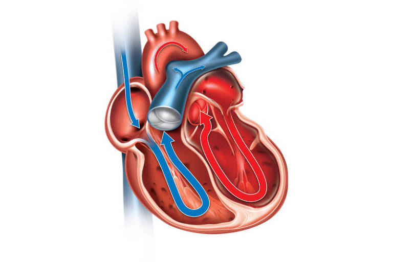 Coração com insuficiência sistólica