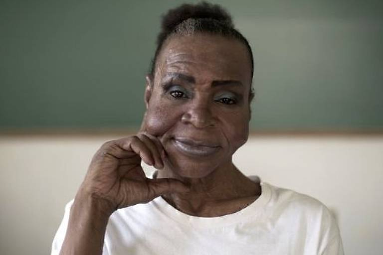 Chica disse que seu maior sonho é fazer uma cirurgia plástica no rosto para corrigir um procedimento feito no passado