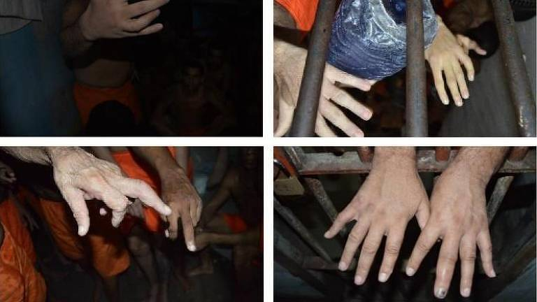Mãos de diferentes presos com indícios de traumatismo nos dedos referentes a tortura, segundo relatório