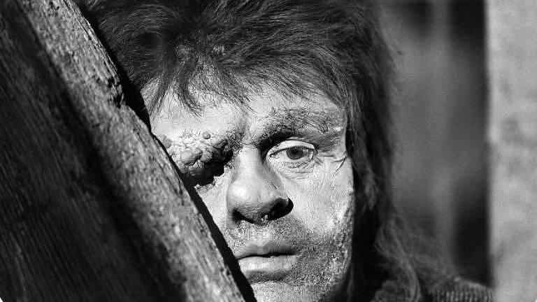 O ator galês Anthony Hopkins interpretou Quasimodo em um filme de 1982