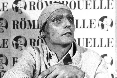 (dpa files) - Austrian Formula 1 pilot Niki Lauda with a scarred face and a bandaged head shows his burns during a press conference in Salzburg, 8 September 1976. Lauda, who was severely hurt in an accident on the Formula 1 race track Nuerburgring in Germany, announced that after his convalescence he wanted to continue his motor racing career.
