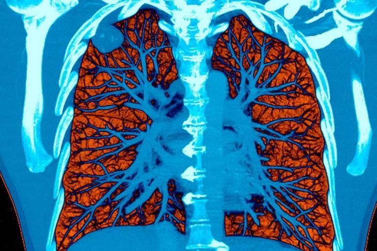 Tomografia computadorizada colorida (nas cores vermelha e azul) mostra pulmão com câncer