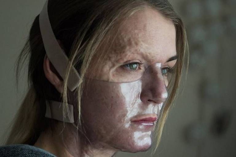 mulher com cicatrizes no rosto