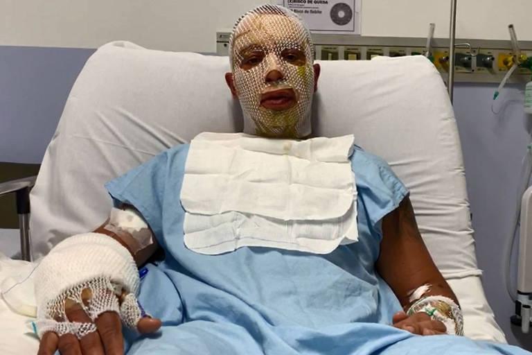 Rogério Lins, prefeito de Osasco, se recupera de acidente com fogueira em festa junina