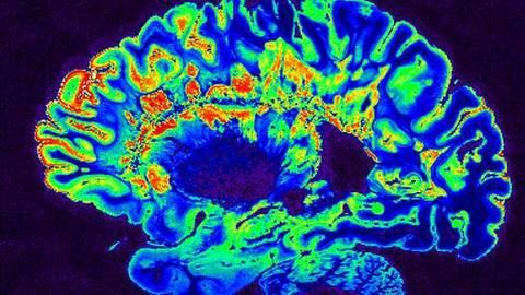 Imagens comprovaram que cérebros de idosos saudáveis tem pior desempenho